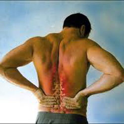 Non-Specific-Low-Back-Pain1