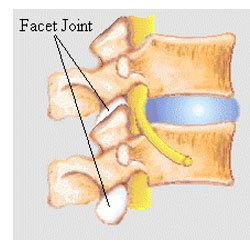 lumbar-facet-joint-pain