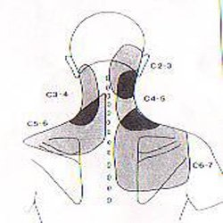 non-specific-neck-pain
