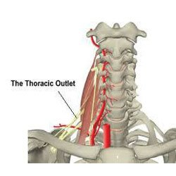 thoracic-outlet