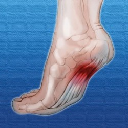 Plantar Fasciitis – The Painful foot!