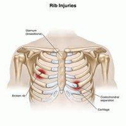 rib-injuries