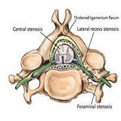 lumbar-stenosis